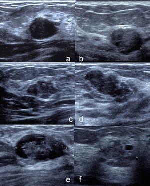 Ultrasonido de distintos tipos de hamartomas mioides. a y b) Nódulos hipoecogénicos, ovalados, circunscritos. c y d) Nódulos hipoecogénicos, ovalados, microlobulados. e) Nódulo ovalado, circunscrito, de patrón complejo sólido quístico. f) Nódulo irregular, microlobulado, hipoecogénico, con quiste en la periferia.