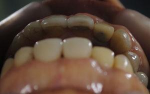 Vista oclusal del defecto en el vestíbulo del implante 1.2; se aprecia una depresión del contorno óseo y gingival.