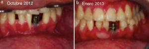 a) Paciente de 19 años, octubre 2012, IOI, falta de encía adherida. b) Enero 2013 imagen poscirugía reconstructiva.
