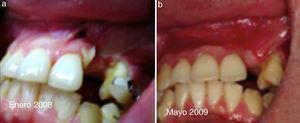 a) Paciente de 19 años, enero 2008 secuela trauma maxilo facial. b) Mayo 2009 estabilidad tisular poscirugía reconstructiva.