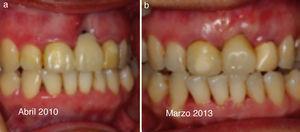 a) Paciente de 27 años. Abril 2010 colapso alveolar IOI. b) Marzo 2011 recuperación tejidos blandos.