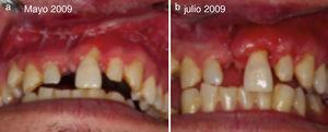 a) Paciente de 27 años. Mayo 2009 secuela trauma maxilofacial. b) Julio 2009 poscirugía reconstructiva tejidos blandos.