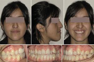 Paciente de sexo femenino, de 23 años. Aspecto clínico extra e intraoral. Nótese la facies progénica y la pobre base apical de la maxila.