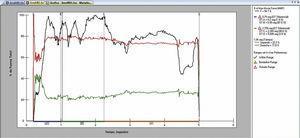 Gráfico. A. Porcentaje de fuerza total/tiempo (s). Total de tiempo de grabación 10seg. Lado izquierdo línea color verde. Lado derecho línea color rojo. Línea de máxima fuerza en negro. A: Marcas de inicio; B: Marca de primer contacto máximo; C: Marca de último máximo contacto; D: Marca de último contacto de desoclusión. DT: Tiempo de desoclusión; IP: tiempo de oclusión en posición intercuspal; OTA: marcas de inicio; OTB: marcas de tiempo final de oclusión; OT: tiempo desde primer contacto dentario hasta posición intercuspal.