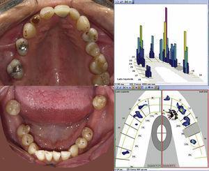 Comparación de los arcos dentarios con el registro en máxima intercuspidación, con Accufilm® II (Parquel). Imagen digital de T-Scan® III. Columna azul: fuerzas bajas. Columna roja: contactos fuertes.