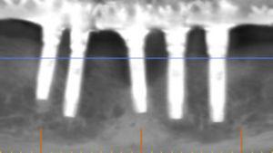 Radiografía con implantes en fallo e indicación de remoción.