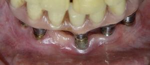 Imagen clínica del implante con roscas expuestas.