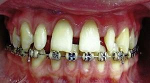 Foto inicial. Diastemas en maxilar superior y laterales en forma de clavija.