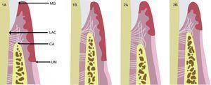 Coslet et al.5 clasificaron morfológicamente EPA en 2 tipos de acuerdo a la localización de la unión mucogingival con respecto a la cresta ósea, y observaron 2 subtipos en referencia a la posición de la cresta ósea con respecto al LAC. En el tipo 1 (1A y 1B) hay un excesivo solapamiento del margen gingival en la corona, la dimensión de la encía queratinizada es considerable y la unión mucogingival se encuentra más apical a la cresta ósea. En comparación con el tipo 2 (2A y 2B) la banda gingival queratinizada es estrecha, la unión mucogingival coincide con el nivel del LAC. Ambos tipos son a su vez clasificados en subtipos A y B. En el subtipo A (1A y 2A) la distancia entre la cresta ósea y la unión cemento-esmalte es de 1,5-2mm (que permite una dimensión normal de fijación de fibra conectiva en el cemento radicular), mientras que en el subtipo B (1B y 2B) la cresta ósea se encuentra muy cerca, o incluso en el mismo nivel que el LAC.