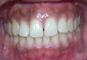 Melanosis gingival fisiológica en un paciente.