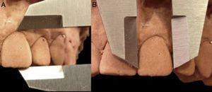 Descripción de las mediciones realizadas para determinar la proporción dentaria. A) Medición del largo dentario a nivel del eje mayor del diente. B) Medicion del ancho de la pieza dentaria.