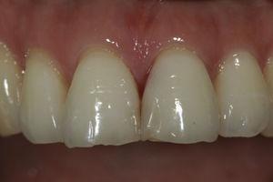 Biotipo periodontal delgado.