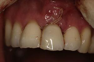 Cirugía (implante, injerto de tejido conectivo y provisionalización con el diente de la paciente).