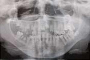 Ortopantomografía inicial.