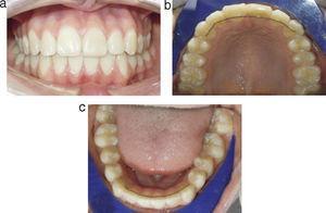 Fotografías intraorales del caso finalizado. a) Vista de frente. b) Vista oclusal superior. c) Vista oclusal inferior.