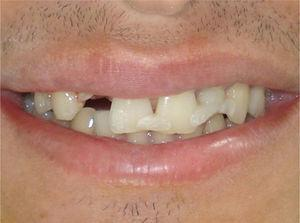 Preoperative view of the maxillary right lateral incisor after trauma.