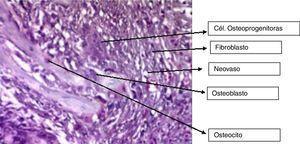 Microfotografía de zona representativa del grupo al nivel del mar con membrana a los 15 días. Microfotografía con aumento de 400×, coloración H-E. Se observa tejido conectivo de granulación con fibroblastos, células osteoprogenitoras y neovasos; formación de trabéculas óseas, osteoblastos y osteocitos.