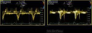 Dessincronia interventricular: diferencial entre os tempos de pré-ejecção dos fluxos pulmonar (129ms) e aórtico (59ms) de 70ms, avaliada por Doppler pulsado espectral.