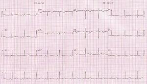 Traçado eletrocardiográfico com QTc de 482ms.
