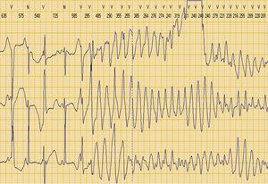 Taquicárdia ventricular polimórfica tipo torsade de pointes, registada em ECG de Holter de 24 horas.