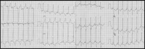 Eletrocardiograma em pacing biventricular. QRS: 120 ms.