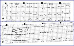 A) ECG durante episódio de dor pré-cordial. Observa-se supradesnivelamento ST nas derivações inferiores. B) ECG 6 minutos após NTG SL com normalização das alterações eletrocardiográficas.