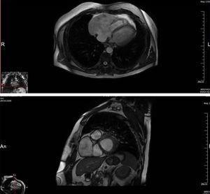 Ressonância magnética cardíaca (FIESTA) mostra cavidade aneurismática anterior e em continuidade com a parede livre da aurícula direita (11,2cm x 6,6cm de diâmetro) num plano longitudinal ao ventrículo direito (cima) e num plano transversal (baixo).