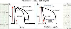A Nos saudáveis, o potencial de ação dos miócitos ventriculares apresenta um pequeno entalhe na fase 1 mediado pela corrente ITO (mais evidente no epicárdio) sem tradução no ECG. B Na SB, o desequilíbrio iónico na fase 1 a favorecer a repolarização no epicárdio forma um gradiente de voltagem transmural que se traduz no ECG como o padrão de repolarização tipo 1.