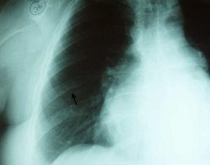 Chest radiograph with inferior rib notching (arrow).