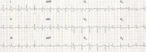 ECG com taquicardia sinusal, padrão de S1Q3T3 e inversão da onda T de V1 a V4 em relação com provável isquémia e/ou sobrecarga no ventrículo direito e região do septo intraventricular.