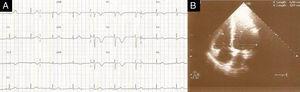 (A) ECG com bradicardia sinusal de 58 bpm, ausência de onda S em DI e inversão da onda T de V1 a V4. (B) ETT no plano apical de 4 câmaras no final da diástole com razão VD/VE <1 e PSAP=25mmHg.