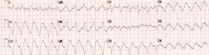 Eletrocardiograma que revela taquicardia ventricular não mantida com uma frequência cardíaca de 180 b.p.m.