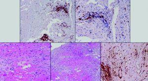 Fragmentos de biópsia endomiocárdica revelando infiltrado linfocitário.
