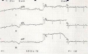 Eletrocardiograma de 12 derivações efetuado na admissão, mostrando baixa voltagem do QRS em todas as derivações.