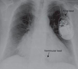 Chest X-ray showing displacement of both leads.