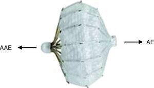 Dispositivo PLAATO (eV3,Inc., Plymouth, MN, Estados Unidos). Adaptado de: Sievert et al27. AAE: apêndice auricular esquerdo&#59; AE: aurícula esquerda.