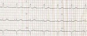 ECG revelando BAV 2.° grau 2:1 com BCRE.