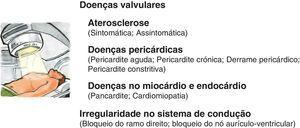 Toxicidade cardiovascular associada à radioterapia.