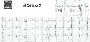 ECG mostra alteração ST-T em V1 (elevação ponto J e supra ST-T em «sela»).