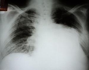 A radiografia do tórax evidencia imagem radiopaca em base e terço médio de hemitórax esquerdo, com bordos calcificados. O parênquima pulmonar apresenta área de oligoemia em terço superior esquerdo e infiltrado intersticial à direita.