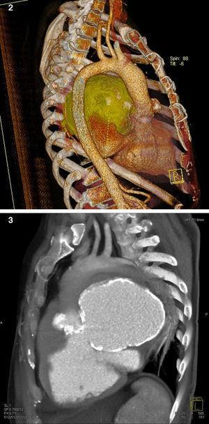 Angiotomografia do tórax mostrando pseudoaneurisma da via de saída do ventrículo esquerdo.