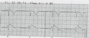 ECG com padrão de Brugada tipo 1.
