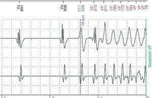 Traçado de Home Monitoring documentando o início de fibrilação ventricular.