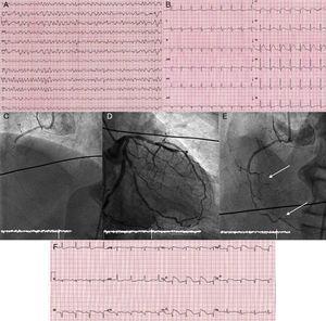 Fibrilhação ventricular (A) responsável pela paragem cardíaca extrahospitalar. Electrocardiograma realizado após as manobras de reanimação cardiopulmonar avançada (B). Angiografias que mostram a oclusão trombótica aguda da artéria coronária direita (C), uma coronária esquerda com circunflexa dominante (D) e o resultado final da angioplastia primária à coronária direita não dominante (E) com recuperação do fluxo em dois ramos agudos marginais dirigidos ao ventrículo direito (setas). O electrocardiograma com elevação do segmento ST em derivações V2R-V4R (F) confirma a existência de uma lesão isquémica do ventrículo direito.