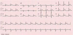 Electrocardiogram on day of chest pain onset: sinus rhythm and slight ST-segment elevation with upward concavity in leads I, II, III, aVF and V3–V6.