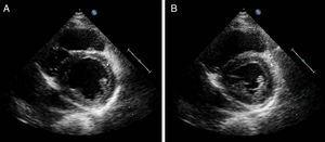 Echocardiogram in parasternal short-axis view showing moderately depressed left ventricular systolic function (ejection fraction of 38%), with global hypocontractility, although more obvious in the posterior, inferior and lateral walls (A – diastole; B – systole).