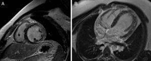 Cardiac magnetic resonance imaging with myocardial suppression after contrast. Late gadolinium enhancement reveals multiple areas of subepicardial myocardial fibrosis, mainly in the inferior and lateral walls, in short-axis (A) and 4-chamber views (B).