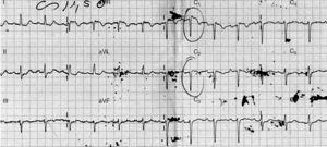 Imagem do ECG à entrada no serviço de urgência. Derivações V1 e V2 com supradesnivelamento de 2mm do segmento ST em rampa descendente e onda T negativa simétrica – padrão de Brugada tipo 1.