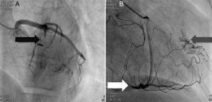 Coronariografia (A): bridging em várias localizações da artéria coronária esquerda (descendente anterior - seta preta). (B): identificam-se várias fístulas da coronária esquerda e coronária direita para o ventrículo esquerdo (seta cinzenta). Visualizava-se um trombo recanalizado no ramo póstero-lateral (seta branca).