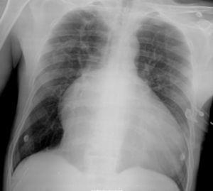 Chest X-ray: cardiomegaly with prominent right cardiac silhouette (marked dilatation of the right atrium) and left convexity suggests dilatation of the right ventricular outflow tract.
